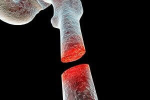 Study: CBD Helps Heal Bone Fractures